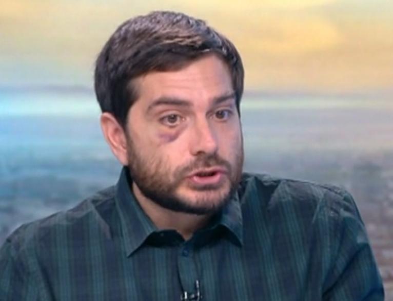 МВР ОФИЦИАЛНО: Журналистът Димитър Кенаров е бит и незаконно задържан